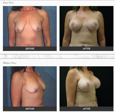 breast augmentation surgeon orange county jpg 746x723